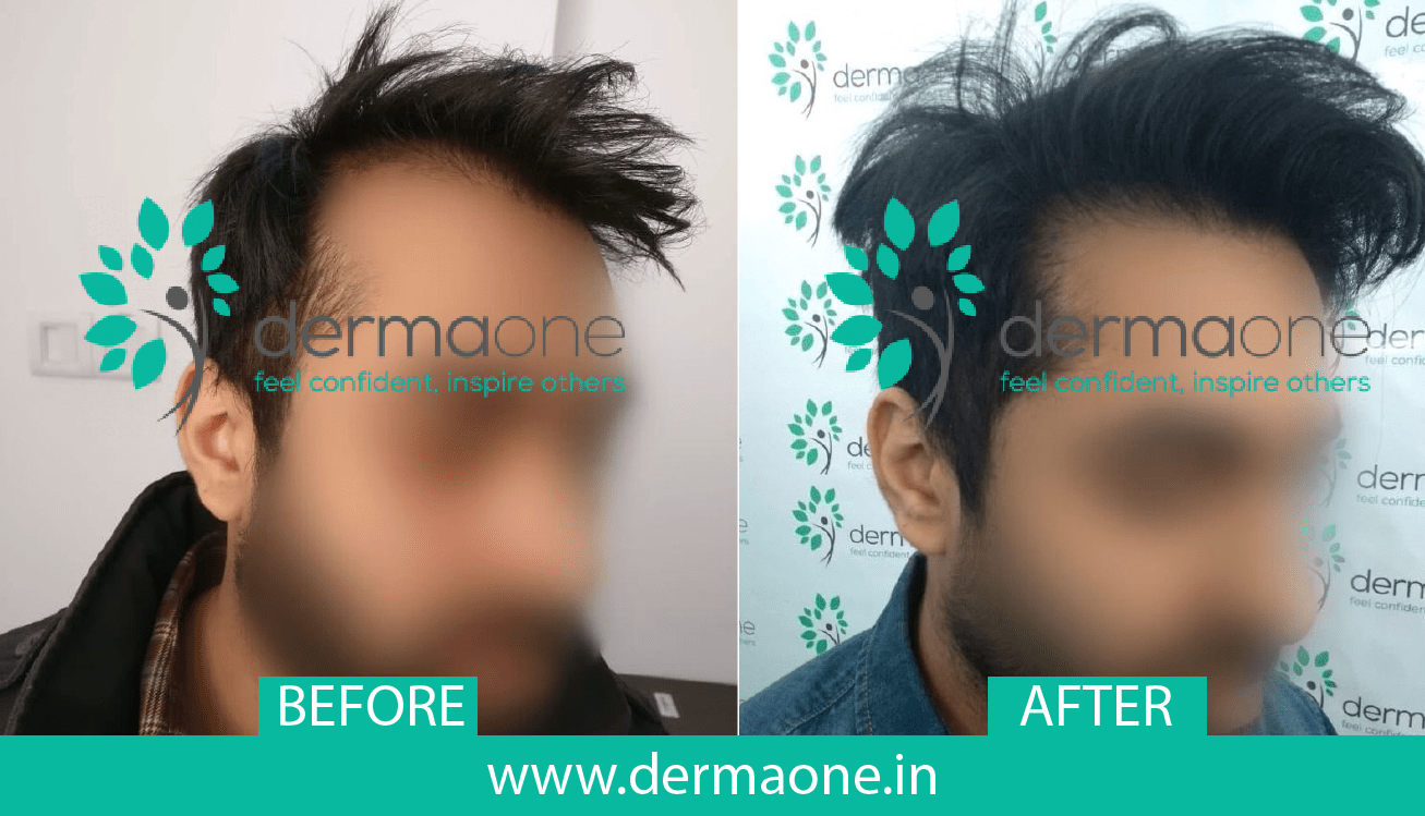 hair-transplant-in-delhi-before-after-result-dermaone-clinic-127