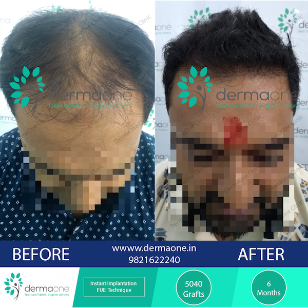 hair-transplant-in-delhi-at-dermaone-clinic-234-before-after-results