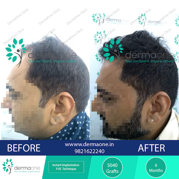 hair-transplant-in-delhi-at-dermaone-clinic-238-before-after-results