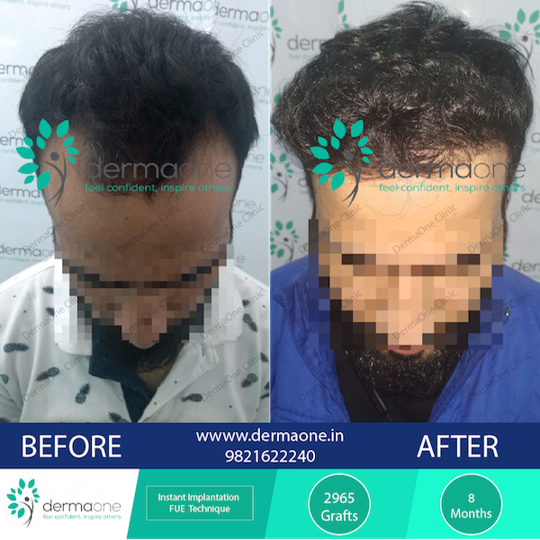 hair-transplant-in-delhi-at-dermaone-clinic-235-before-after-results